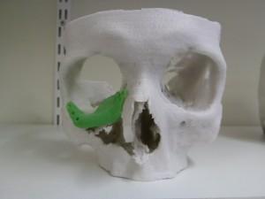 3D-afdruk_schedel
